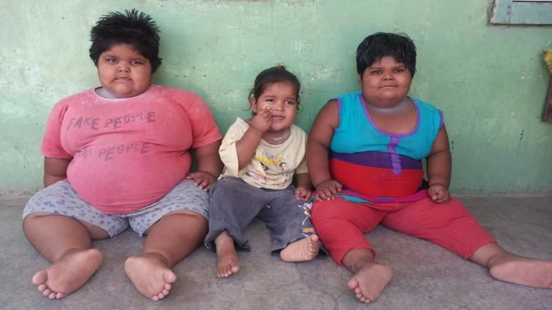 Obese kids from Gujarat