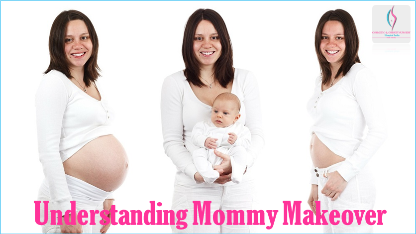 Understanding Mommy Makeover