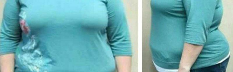 Roux-en-Y gastric bypass in India