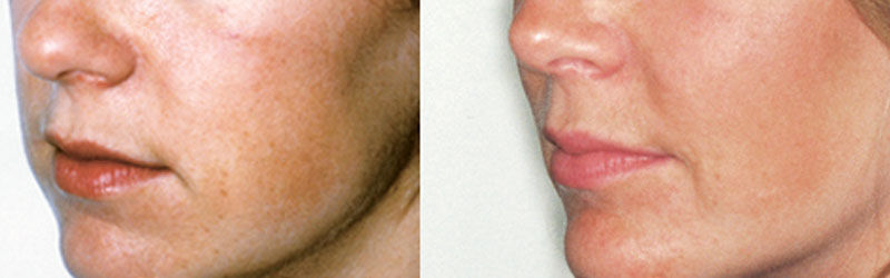 Chin Cheek Before and After