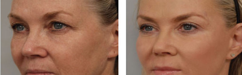 Corrective Cosmetic Surgery
