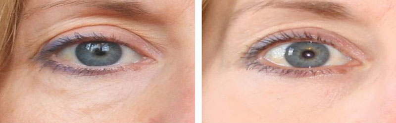 Dark Circles Before and After2