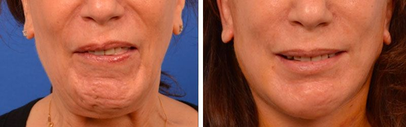 Facial Paralysis Before and After
