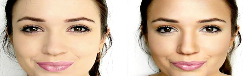 Facial Sculpting Before and After