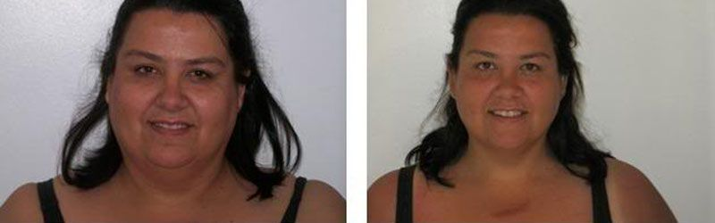 Gastric Band Before and After