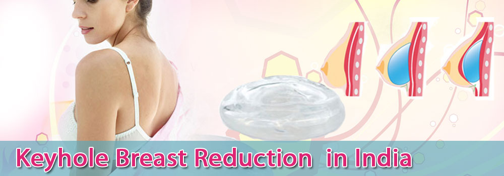 Keyhole Breast Reduction