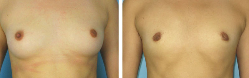 Key Hole Breast Reduction
