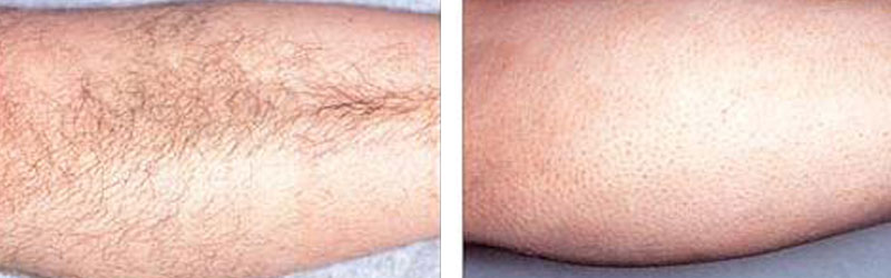 Laser Hair Treatment Before and After