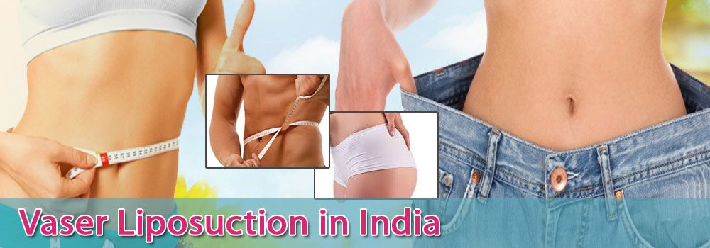 Low Cost Vaser Liposuction in India