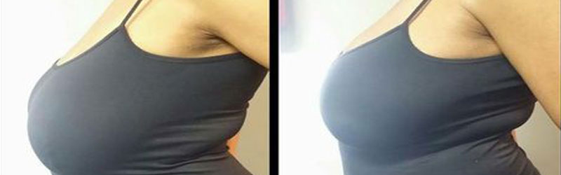 Scarless Breast Augmentation Before and After