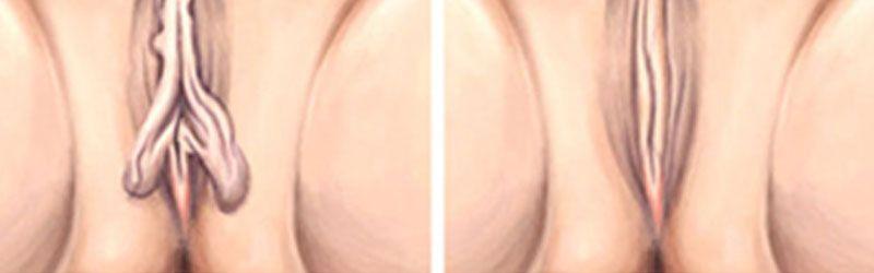 Vaginal Rejuvanation