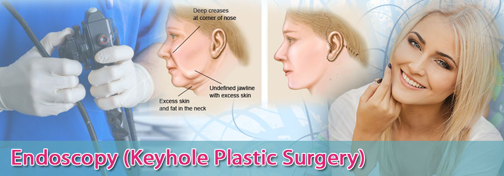 Endoscopy-Keyhole-Plastic-Surgery