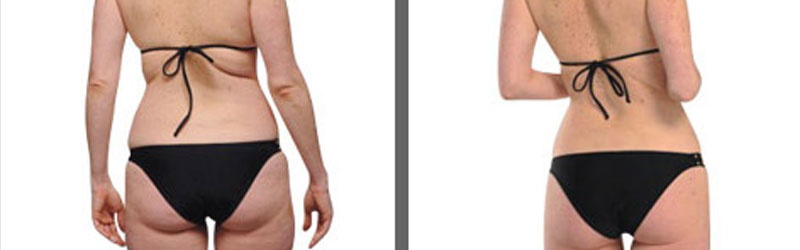 buttock lift