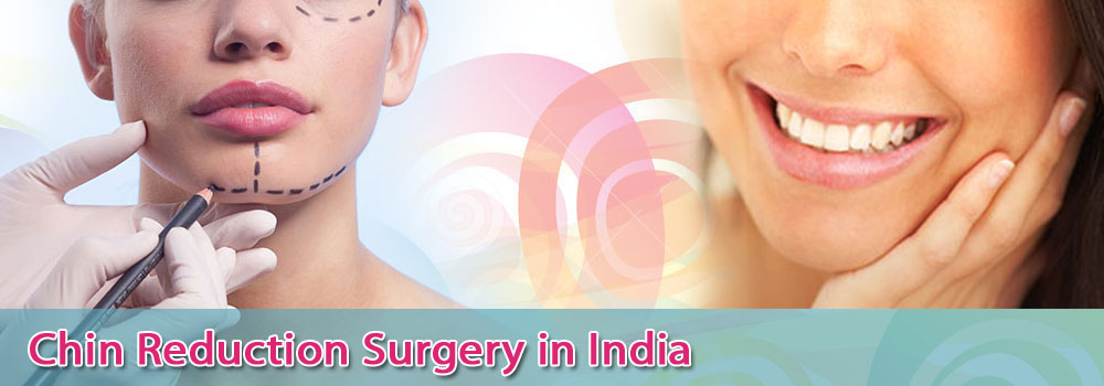 Low Cost Chin Reduction Surgery in India