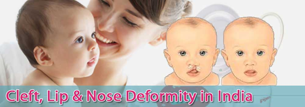 Low Cost Cleft Lip Nose Deformity In India