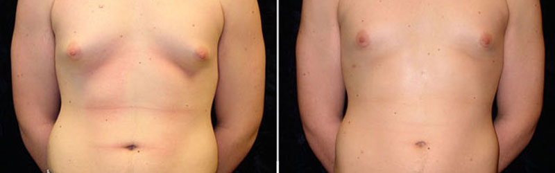 Male Breast Reduction in India
