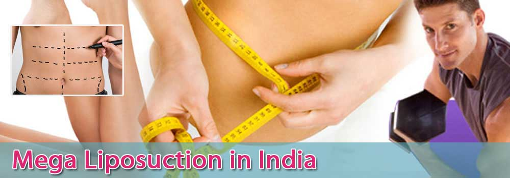 Mega Liposuction In India At Affordable Price