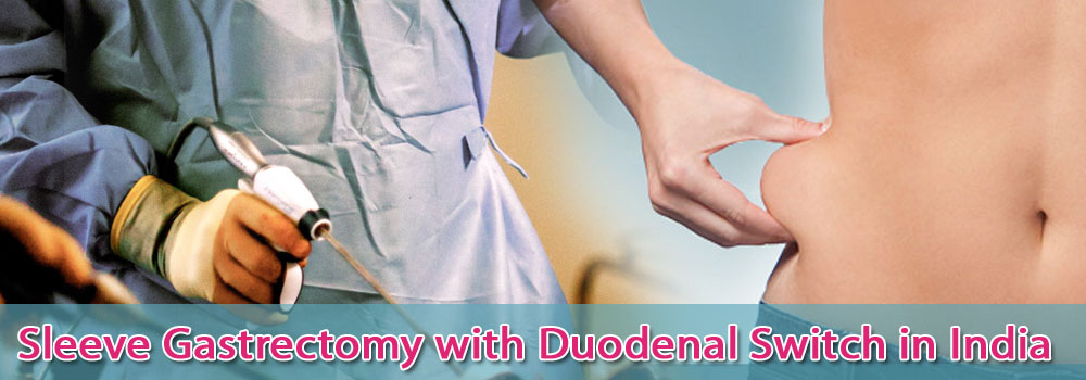 Sleeve Gastrectomy Duodenal Switch Surgery India