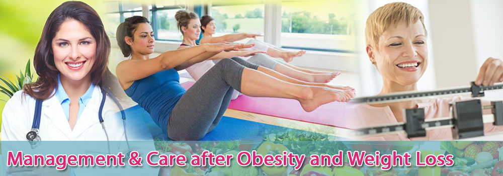 Management-Care-after-Obesity-weight-loss