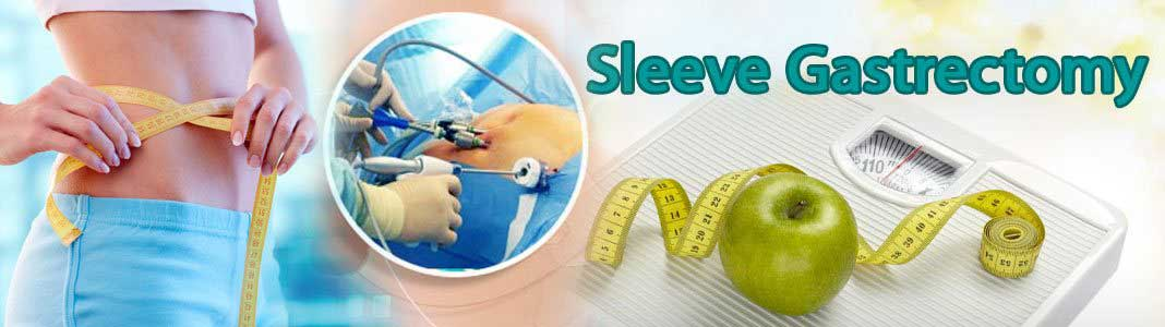 Sleeve Gastrectomy Surgery in India